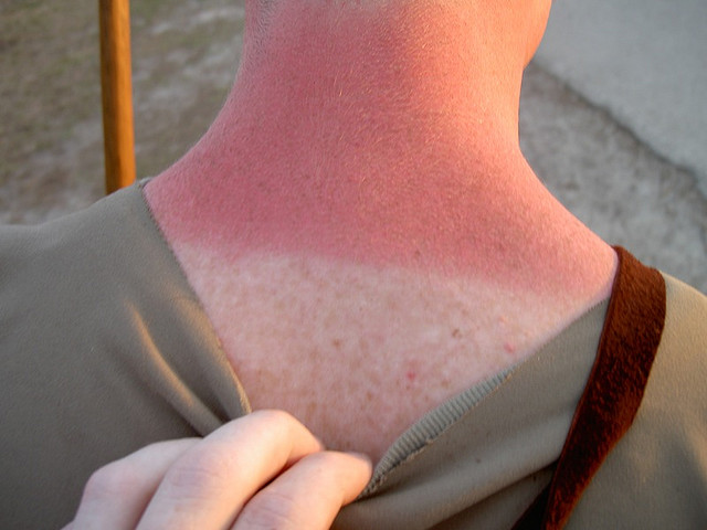 This picture is of a painful bad sunburn.