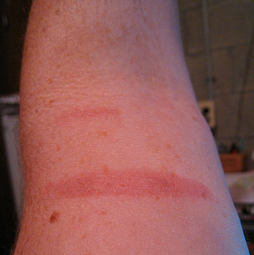 Picture shows a red, first degree burn about two inches long on the inner part of an arm.