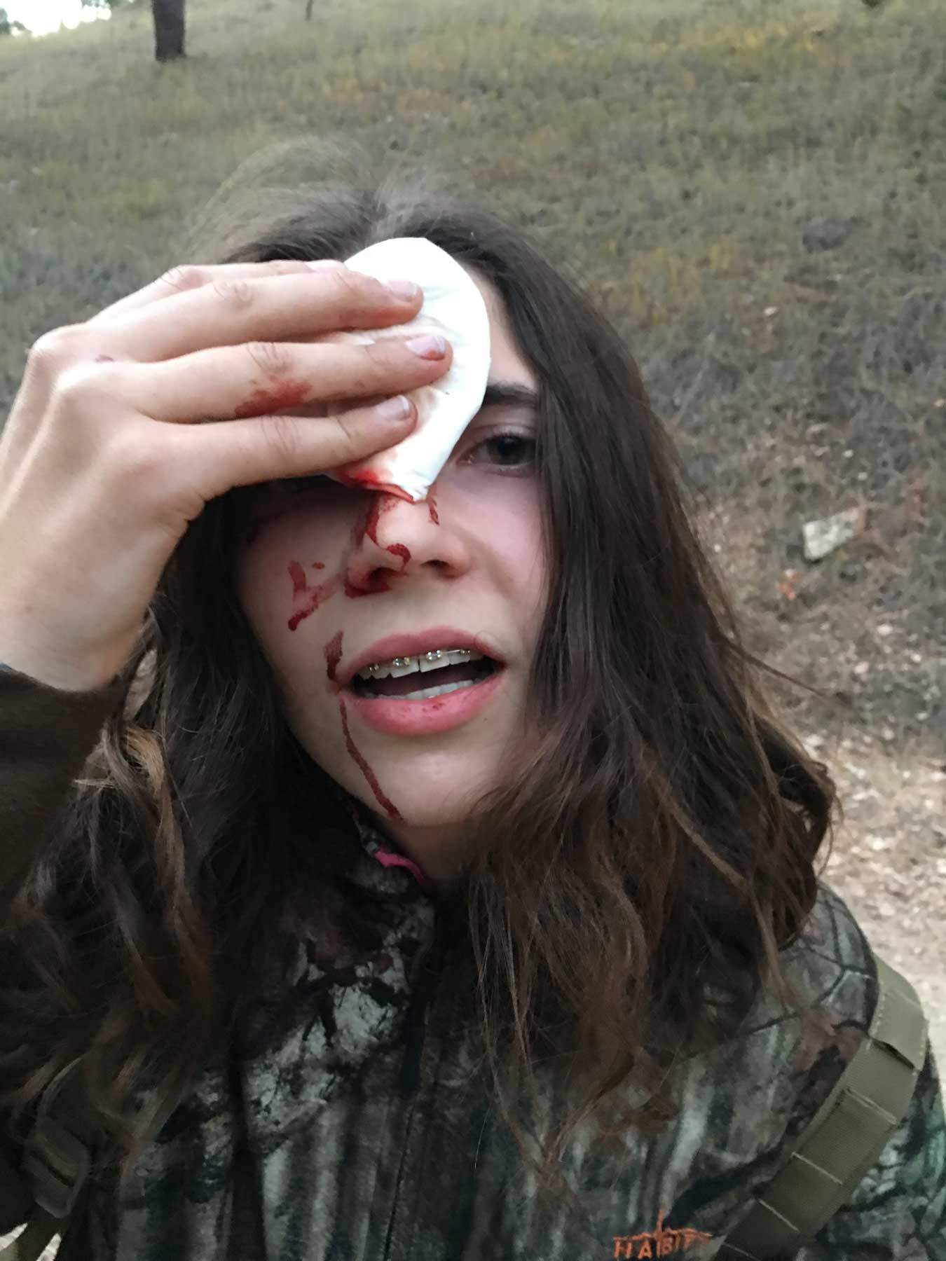 Woman holding a bandage and bleeding from the forehead